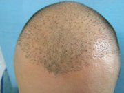 Unnaturally looking hairline resulting from the Strip method transplant in another facility
