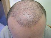 Po roce od transplantace byste Ondřejovu hlavu nepoznali – opět ji pokrývá solidní vlasový porost