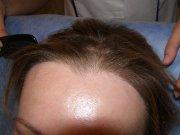 Stav po roce od transplantace ‒ nově vytvořená vlasová linie působí velmi přirozeně