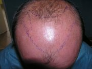 Front view. The hairline must recede backwards. Otherwise the hairline would look very unnatural. Twice as many grafts would be needed.
