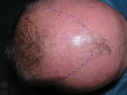 Top view. The outline of the future hairline