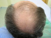 Klasický případ úbytku vlasů v oblasti vertexu