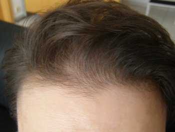 Receding front hairline