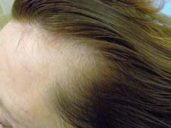 ... že žien trpiacich vypadávaním vlasov stále pribúda a to celosvetovo. Aj  napriek tomu 8b4be2b136f